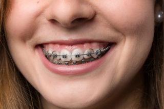 https://www.medipark.pl/wp-content/uploads/2016/08/fotolia_108193598-ortodoncja-320x214.jpg