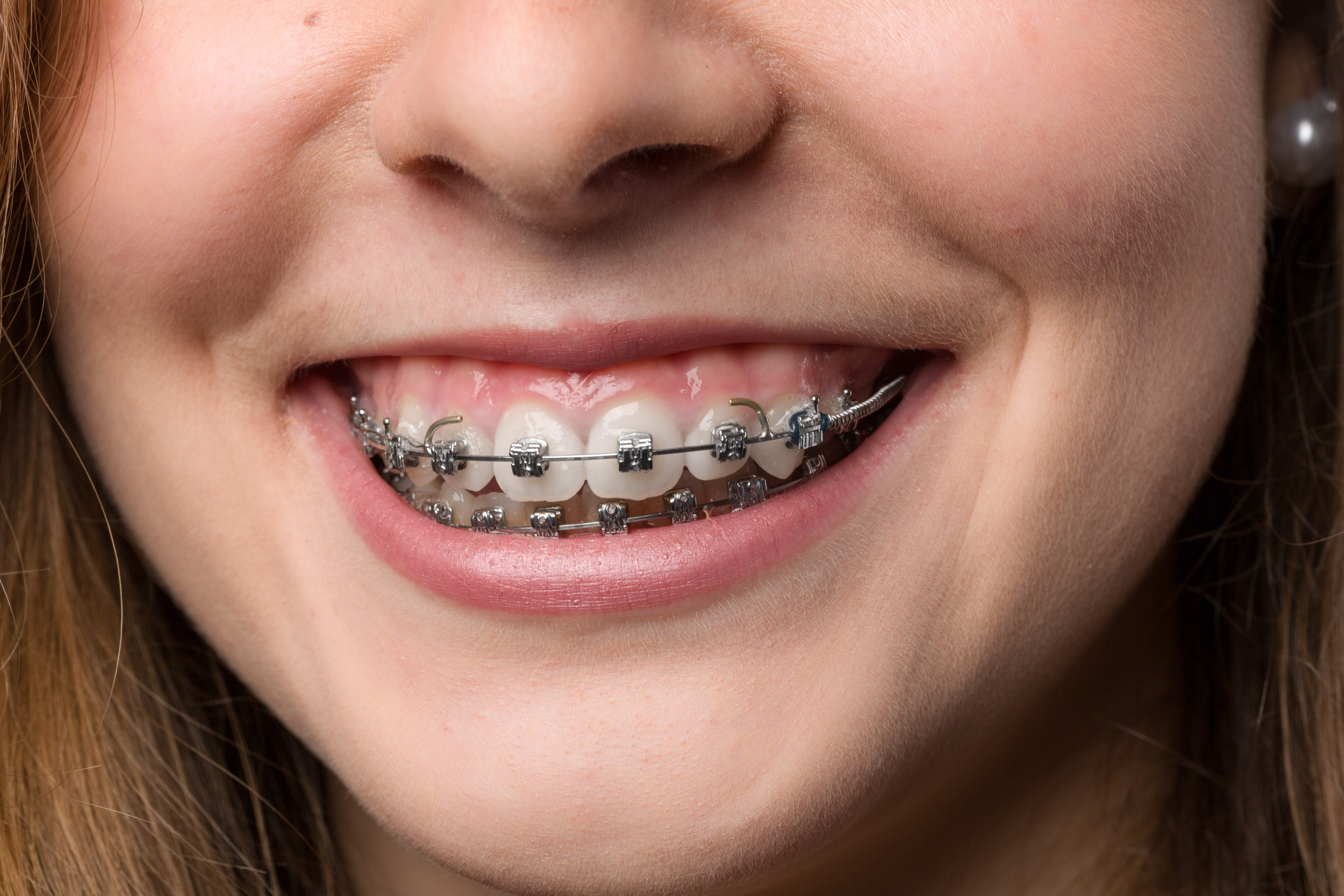 https://www.medipark.pl/wp-content/uploads/2016/08/ortodonta.jpg